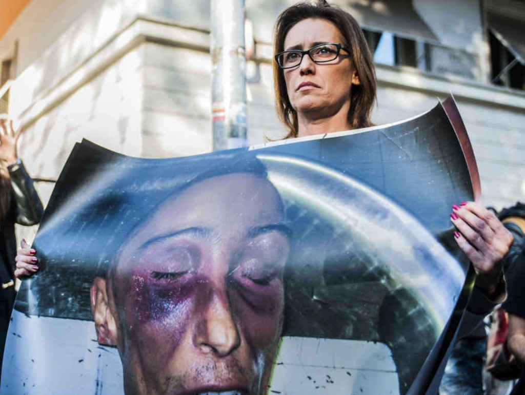 The face of Stefano Cucchi after his death in custody seven years ago. As of today, no police officer has been held responsible for his death.